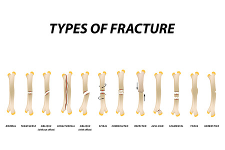 Types of fracture. Fracture bone set. Infographics. Vector illustration on isolated background Ilustração