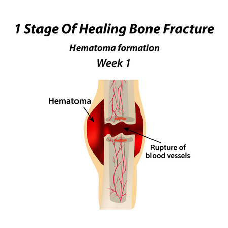 1 Stage Of Healing Bone Fracture. Formation of callus. The bone fracture. Infographics. Vector illustration on isolated background Illustration