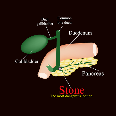 Stone pancreatic bile duct.  The gall bladder, duodenum, bile ducts. Vector illustration on a black background