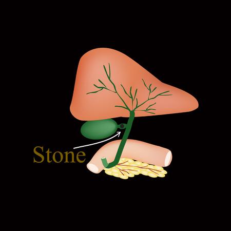 Stone bile duct. Gallbladder, duodenum, pancreas, bile ducts. Vector illustration on a black background Illustration