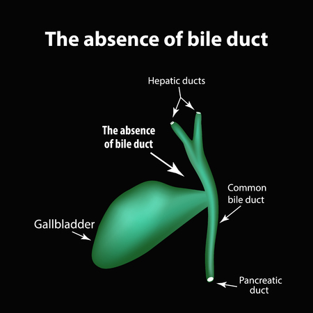 The absence of bile duct. Pathology of the gallbladder. Cholecystitis. The structure of the gallbladder. Infographics. Vector illustration.