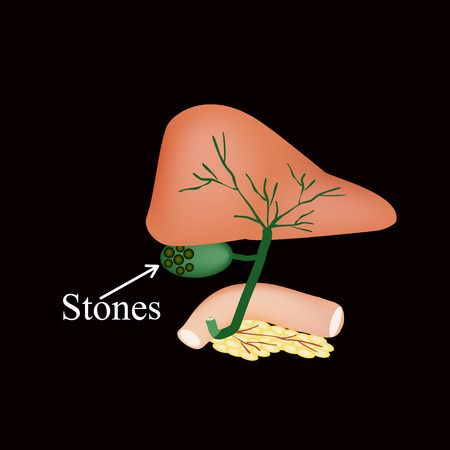The stones in the gallbladder. Duodenum, pancreas, bile ducts. Vector illustration on a black background. Illustration
