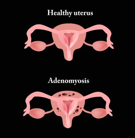 Endometriosis. The structure of the pelvic organs. Adenomyosis. The endometrium. Vector illustration Illustration