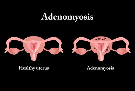 Endometriosis. The structure of the pelvic organs. Adenomyosis. The endometrium. Vector illustration