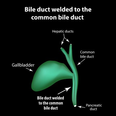 Bile duct welded to the common bile duct. Pathology of the gallbladder. Cholecystitis. The structure of the gallbladder. Infographics. Vector illustration.