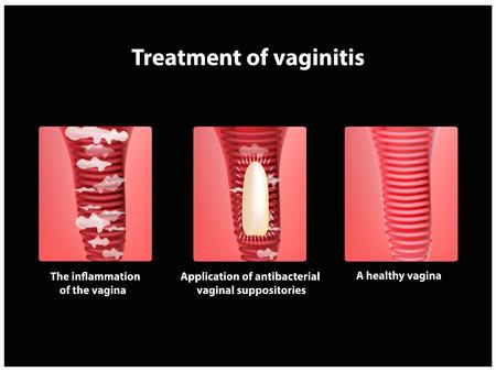 Treatment of vaginitis suppositories. inflammation the vagina. Infographics. vector illustration Illustration