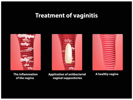 Treatment of vaginitis suppositories. inflammation the vagina. Infographics. vector illustration Çizim