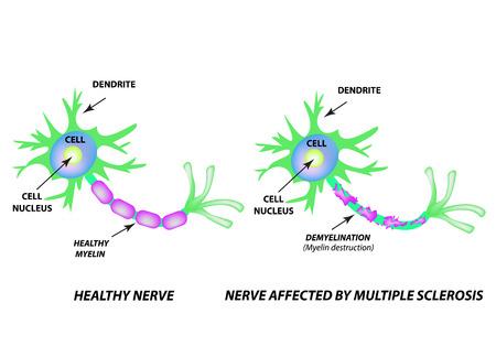 La destrucción de la vaina de mielina en el axón. Mielina dañada. Neurona afectada por esclerosis múltiple. Día mundial de la esclerosis múltiple. Infografía. Ilustración de vector sobre fondo aislado