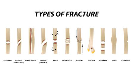 Arten von Fraktur. Knochenbruch eingestellt. Infografiken. Vektorillustration auf lokalisiertem Hintergrund. Vektorgrafik