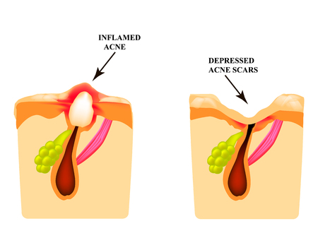 Inflamed acne on the skin. Inflamed pimple. The structure of the skin. Acne scar