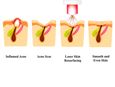 Inflamed acne on the skin. Inflamed pimple. Acne scar. Laser treatment. Laser polishing. The structure of the skin. Wrinkles. Infographics. Vector illustration on isolated background Illustration