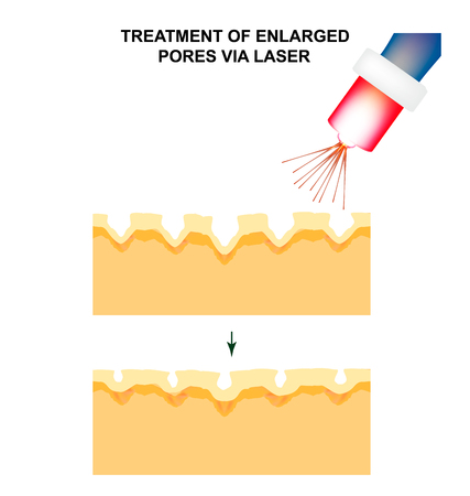 Enlarged pores. The structure of the skin. Wrinkles, acne scar. The narrowing of the pores by a laser. Infographics. Vector illustration on isolated background. Illustration