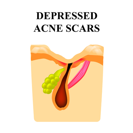 Acne scar. The structure of the skin. Wrinkles. Infographics. Vector illustration on isolated background