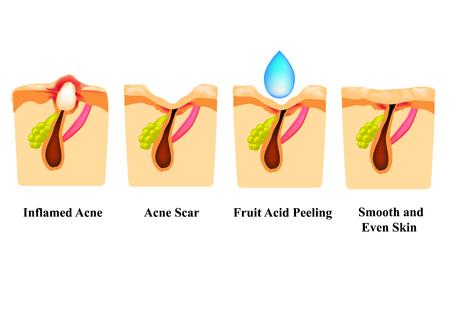 Acné enflammée sur la peau. Bouton enflammé. Cicatrice d'acné. Peeling à l'acide. La structure de la peau. Les rides. Infographie. Illustration vectorielle sur fond isolé
