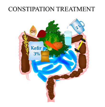 Treatment of constipation. Infographics. Vector illustration on isolated background. Stock Illustration - 124620359