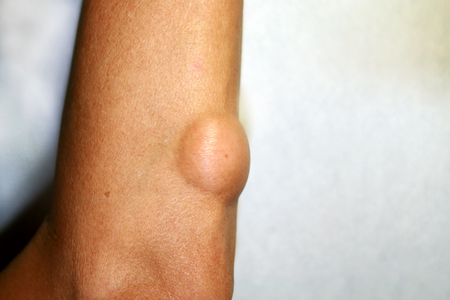 Lipoma on the elbow of the arm