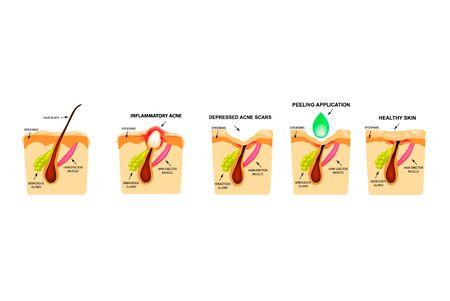 Tratamiento de comedones abiertos, acné inflamado, quistes de acné. Dolor de acné. La estructura de la piel. Tratamiento de cicatrices de acné y espinillas. Peladura. Infografía. Ilustración de vector sobre fondo aislado. Ilustración de vector