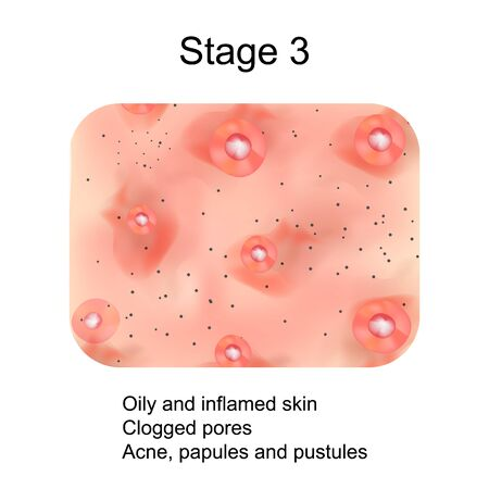 Stage 3 of development of acne. Inflamed skin with scars, acne and pimples. The texture of inflamed skin, and acne and pimples. Infographics. Vector illustration.