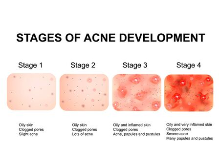 Stages of development of acne. Inflamed skin with scars, acne and pimples. The texture of inflamed skin, and acne and pimples. Infographics. Vector illustration.