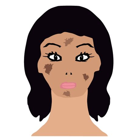 Face with pigmentation. Brown spots on the skin. Infographics. Vector illustration on isolated background.