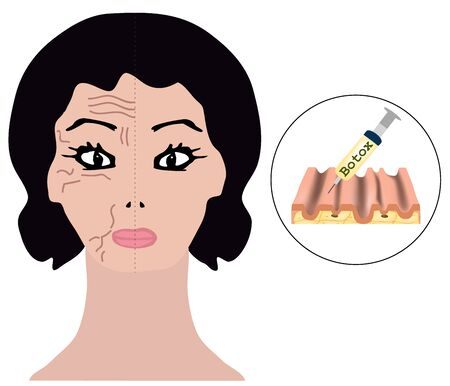 Wrinkles on one half of the face treatment. beauty injections. Infographics. Vector illustration on isolated background. 일러스트