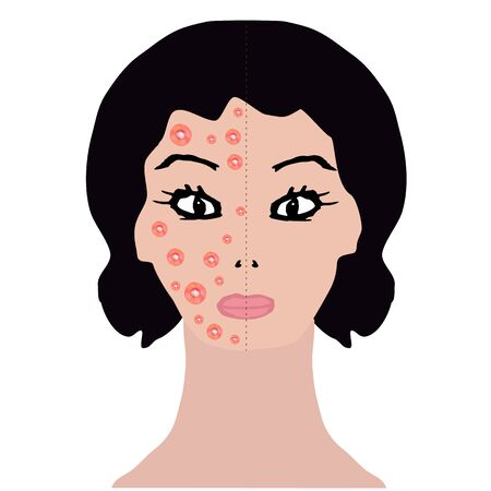 Rash on face. Allergy, dermatitis, acne, pimples. Infographics. Vector illustration on isolated background.