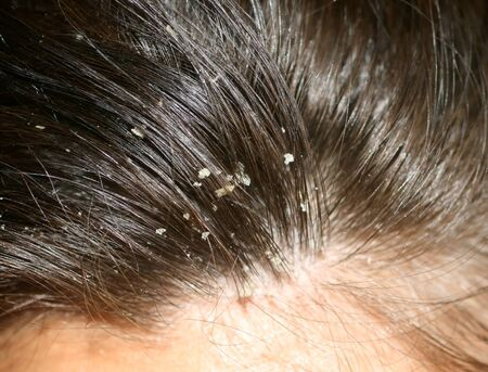 Dandruff on the hair. Hair disease seborrhea. Fatty Dandruff.