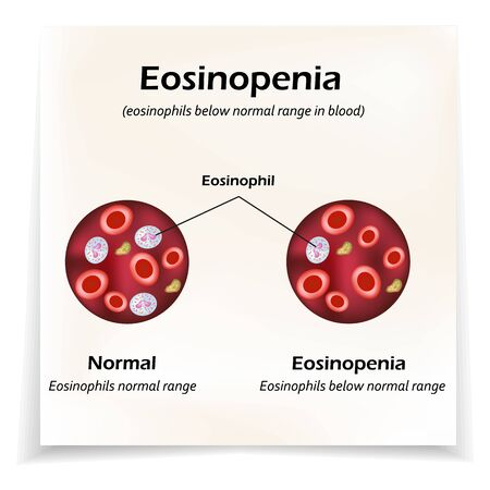 Eosinophils below normal range in blood. Eosinopenia. Infographics. Vector illustration