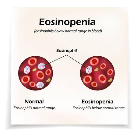 Eosinophils below normal range in blood. Eosinopenia. Infographics. Vector illustration