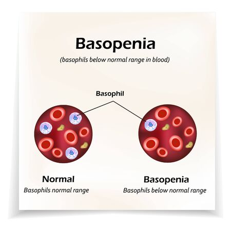 Basophils below the normal range in the blood. Basopenia. Infographics. Vector illustration Ilustração