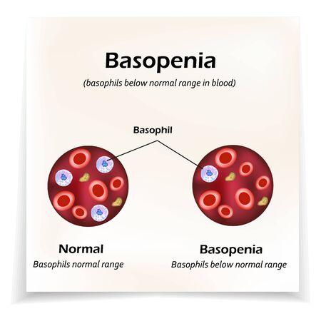 Basophils below the normal range in the blood. Basopenia. Infographics. Vector illustration Illustration