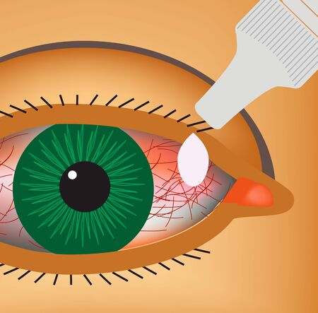 Conjunctivitis. Redness and inflammation of the eye. Vessels. Eye drops. Infographics. Vector illustration.