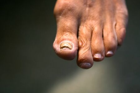 Fungus on the nail. Twisted fingers on the foot with calluses. Bone on the big toe. 写真素材