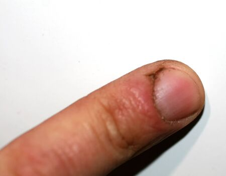 Crack on the thumb. Burr and dirt on the skin. The hand of the working man