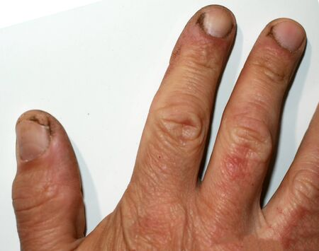 Crack on the thumb. Burr and dirt on the skin. The hand of the working man.