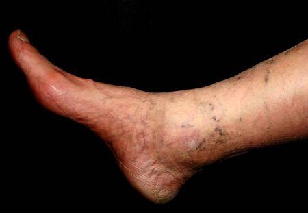 Leg. Varicose veins. Phlebeurysm. Thrombophlebitis. leg in veins. Reklamní fotografie