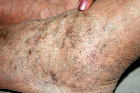 Leg. Varicose veins. Phlebeurysm. Thrombophlebitis. leg in veins Reklamní fotografie