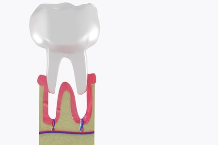 Molar extraction. Tooth loss Anatomical structure. 3d medical illustration.