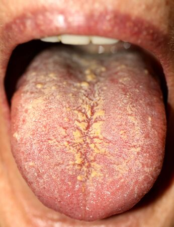 Thrush on the tongue. Geographic tongue. Candidiasis.