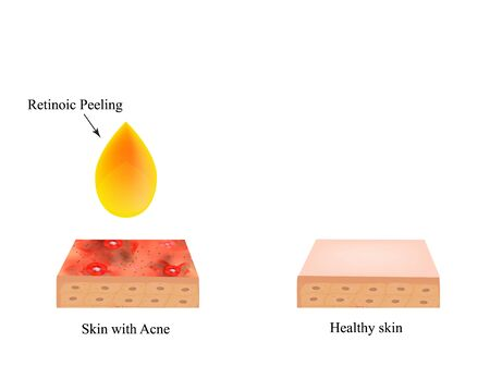 Retinoic peeling for acne. Inflamed skin acne. Acne purulent. The anatomical structure of the skin. Infographics. Vector illustration on isolated background