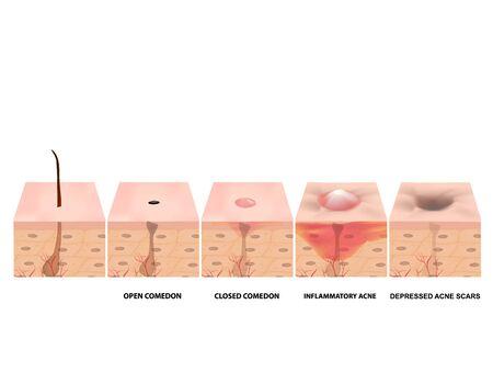 Traitement des comédons ouverts, de l'acné enflammée, des kystes d'acné. Acné douloureux. structure de la peau. Traitement des cicatrices d'acné et des boutons. points noirs. Infographie. Illustration vectorielle sur fond isolé Vecteurs
