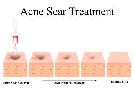 Cicatrices d'acné. Traitement atrophique des cicatrices au laser. La structure anatomique de la peau avec l'acné. Illustration vectorielle sur fond isolé.