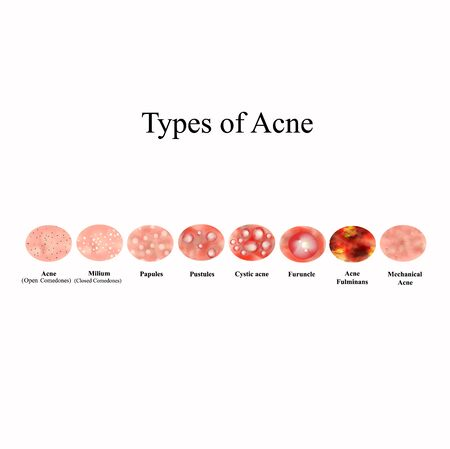 Types of Acne Skin inflammation. Pimples, boils, whitehead, closed comedones, papules, pustules, cystic acne. Infographics. Vector illustration on isolated background.