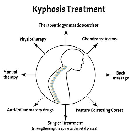 Kyphosis treatment. Spinal curvature, kyphosis, lordosis, scoliosis, arthrosis. Improper posture and stoop. Infographics. Vector illustration on isolated background. Vettoriali