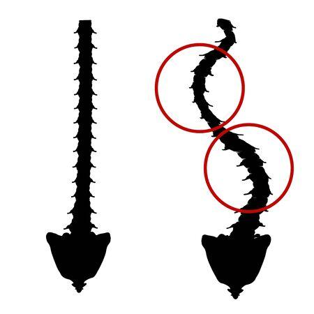 Schwarze und weiße Silhouette Symbol Skoliose. Wirbelsäulenverkrümmung, Kyphose, Halslordose, Skoliose, Arthrose. Fehlhaltung und Bücken. Infografiken. Vektorillustration auf isoliertem Hintergrund