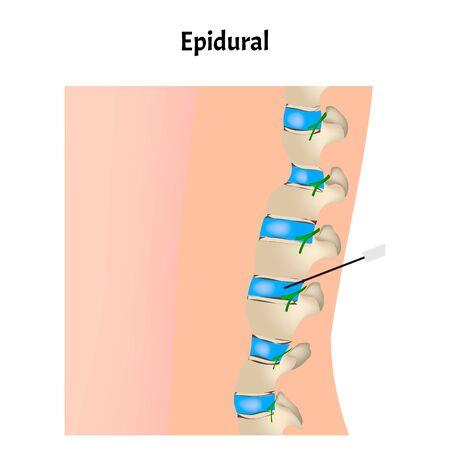 Epidural anesthesia during childbirth. Epidural anesthesia of pregnant women. Vector illustration.
