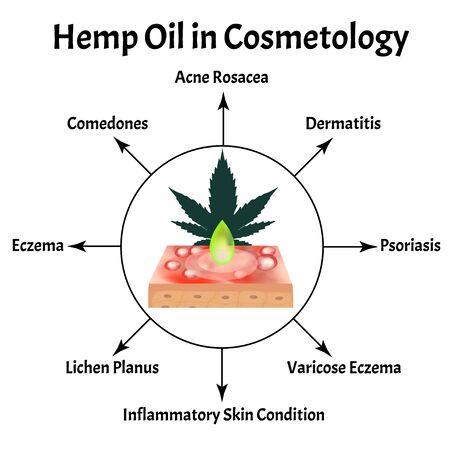 Marijuana oil in cosmetology. Marijuana icons cbd. Cannabinoid. Marijuana Leaves. Hemp oil. Infographics. Vector illustration on isolated background. Illustration
