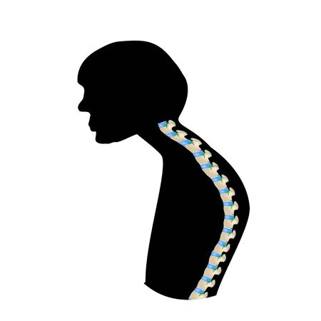 The position of the spine with kyphosis. Black and white silhouette icon. Spinal curvature, kyphosis, lordosis, scoliosis, arthrosis. Improper posture and stoop. Infographics. Vector illustration.