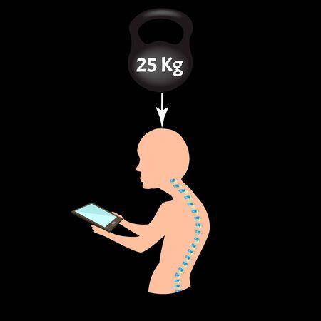 Improper posture symptoms. Text Neck Syndrome. Spinal curvature, kyphosis, lordosis, scoliosis, arthrosis. Improper posture and stoop. Infographics. Vector illustration.