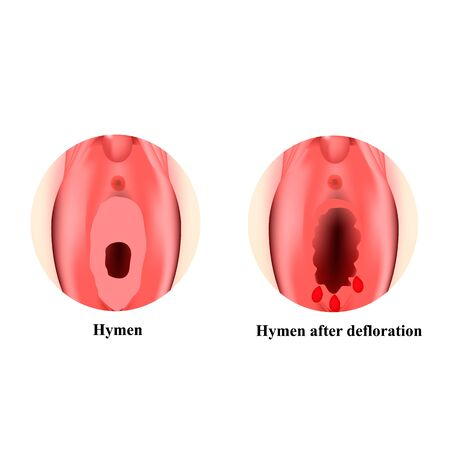 The structure of the vulva hymen. Hymenoplasty. Hymen after defloration. Female genital organs. Infographics. Vector illustration on isolated background.